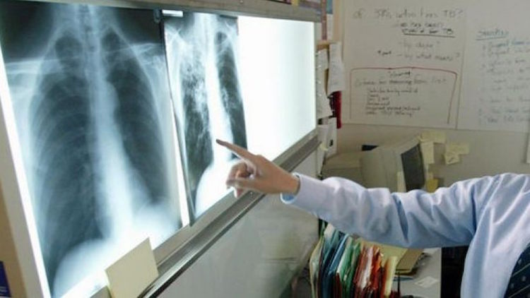 TB CASES ON THE RISE, REVEALS GOVT DATA