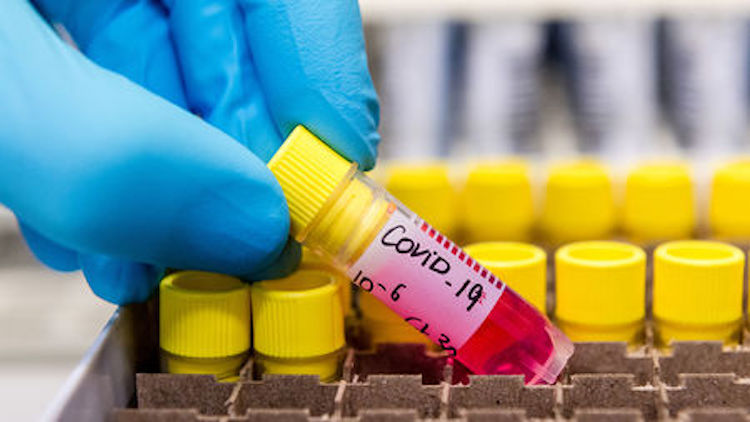 COVID-19 Cases In India Soars To 129
