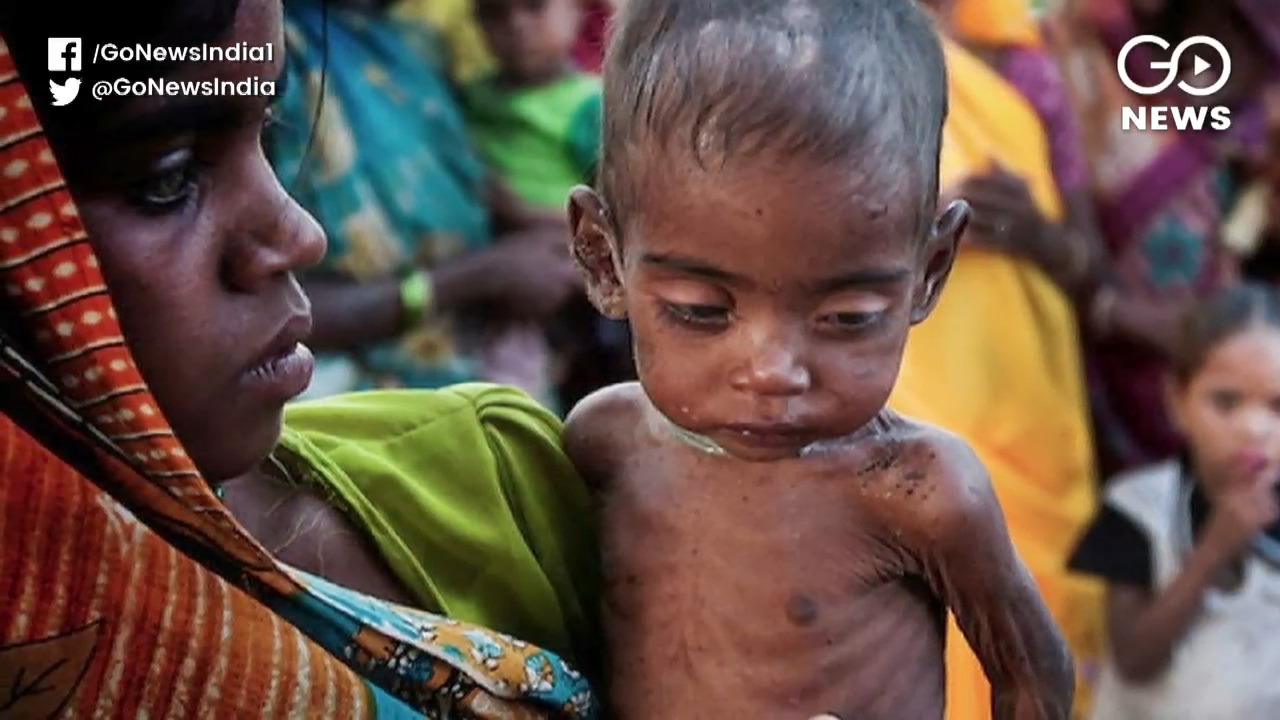 India Accounts For 50% Malnutritioned Children In