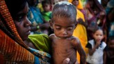 Malnutrition children death The Lancet